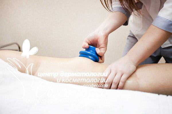 Лечение локальных жировых отложений с помощью вакуумного массажа.