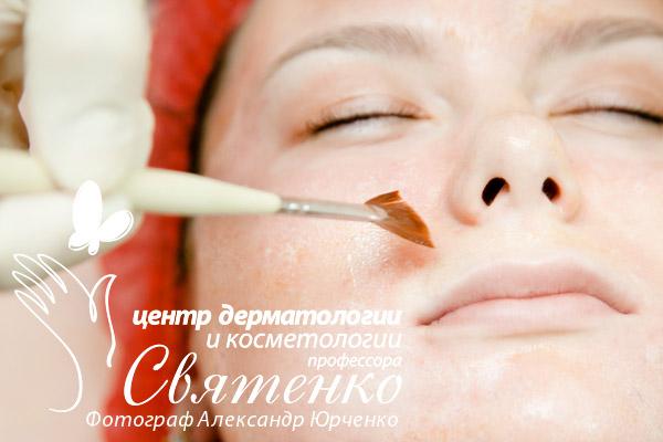Процедуру химической эксфолиации проводит врач нашего Центра дерматологии и косметологии профессора Святенко.