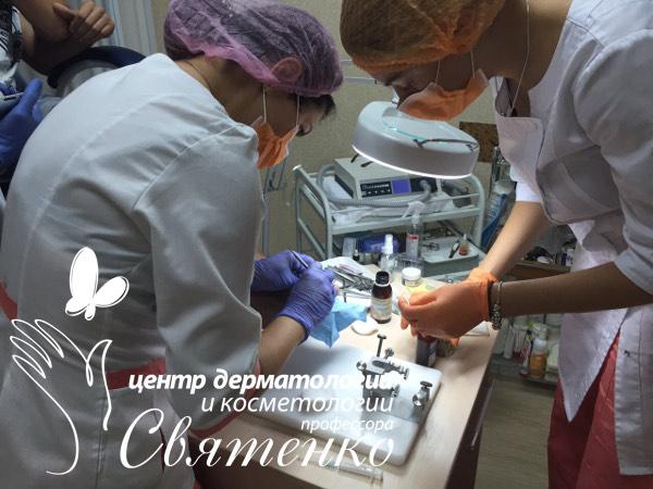 Korrekcija-vrosshego-nogtja-metodom-Arkady-Dnepr-Ukraina