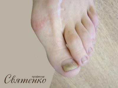 Фотография грибка ногтей на ноге.