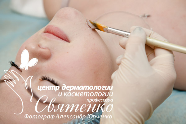 Врач косметолог проводит процедуру по лечению розовых угрей в Днепре.