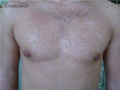 Фотография груди пораженной заболеванием отрубевидным (разноцветным) лишаем.