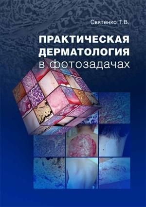 Практическая дерматология в фотозадачах Т.В Святенко (обложка книги)