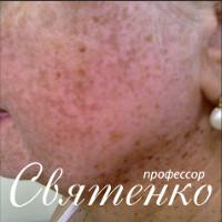 На фотографии женщина с веснушками (эфилидами).