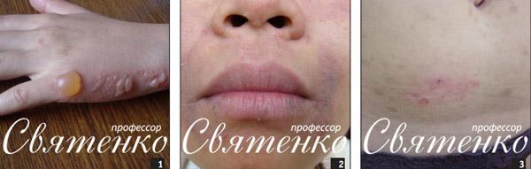 На фотографии: фотофитодерматоз, контактный аллергический дерматит и контактный дерматит.