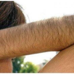 Гирсутизм лечение