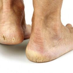 Трещины на стопах ног лечение