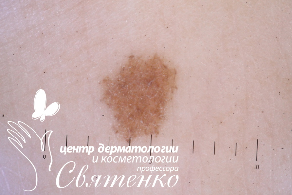 Udalenie-rodinok-Dnepropetrovsk