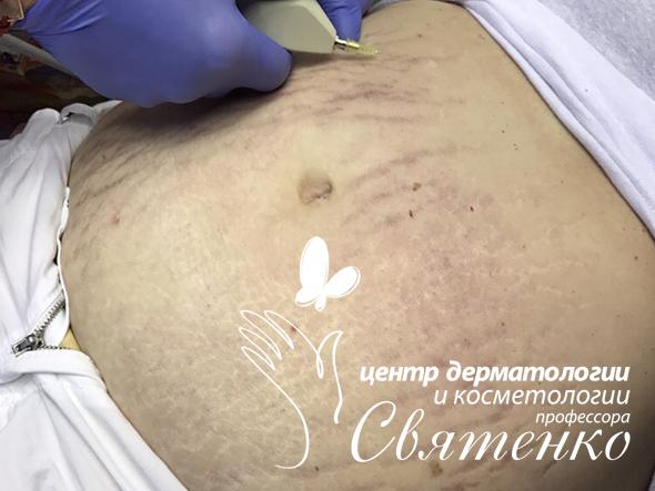 Карбокситерапия живота в Днепре