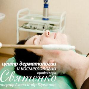 Криотерапия
