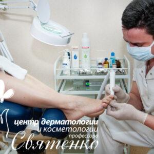 Деформация ногтей (ониходистрофии) лечение