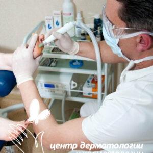 Мозоли на ногах лечение