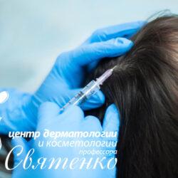Мезотерапия для лечения волос