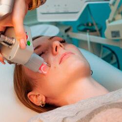Лечение постакнэ рубцов с помощью CO2 лазера