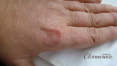 Фотография кольцевидной гранулемы.