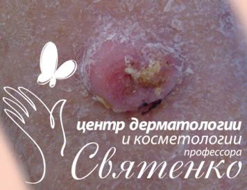 Пиогенная гранулема (ботриомикома) с фирменным логотипом клиники.