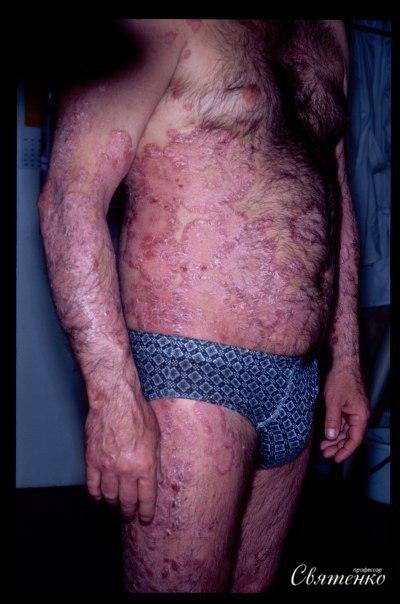 Фотография мужчины больного псориазом.