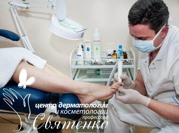Лечение деформации ногтей (ониходистрофий) в Днепропетровске.