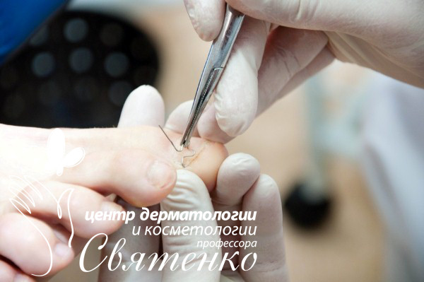 Подология в городе Днепропетровске.