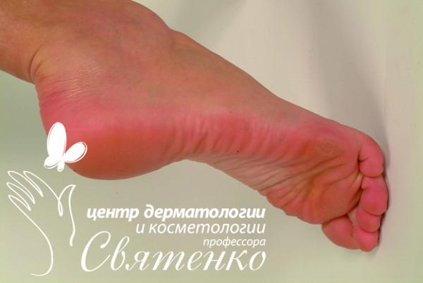 Рекомендации по дезинфекцииобуви при грибковыхзаболеваниях стоп и ногтей.