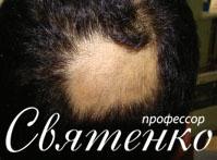 Алопеция: классификации, этиопатогенез, терапия Днепропетровск