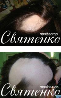 Гнездная или очаговая алопеция сфотографированная профессором Святенко.