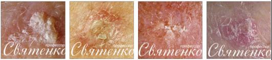 4 формы солнечного кератоза изображенного на рисунке.