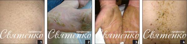 На фотографии: Вульгарный ихтиоз, Ладонно-подошвенная кератодермия, Себорейный кератоз.
