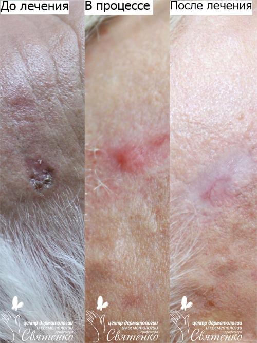 Лечение базалиом (базально-клеточного рака)