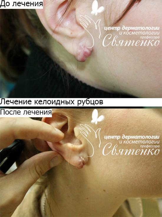 Лечение келоидных рубцов в нашей клинике Днепропетровск