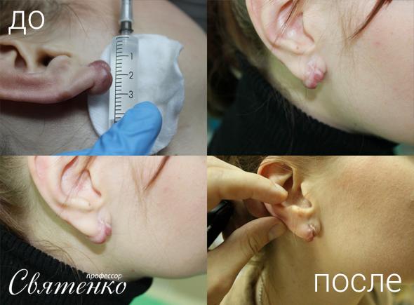 До и после лечения келоидных рубцов (шрамов)