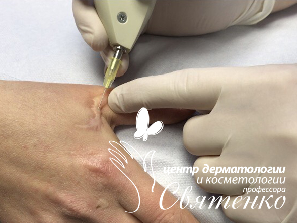 Карбокситерапия шрамов в Днепре